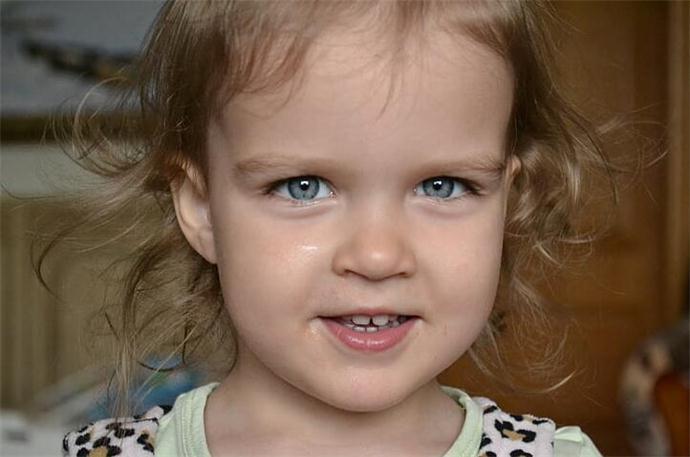 去眉间纹最好的方法 一解诸位的燃眉之急好让你显青春靓丽
